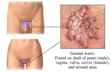 Penis Skin Tags How To Remove Them From Genital Area Safely