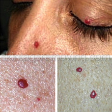 Red Skin Tags