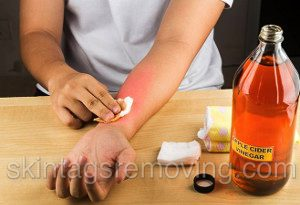 Best ringworm treatment home remedies