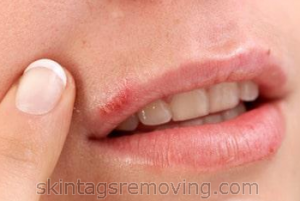 canker sore on face