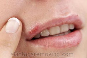 Medications for herpes treatment