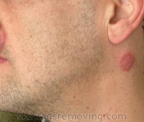 Information on ringworm on neck