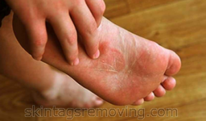 Ringworm on foot