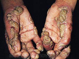 Treatment for scabies on hands