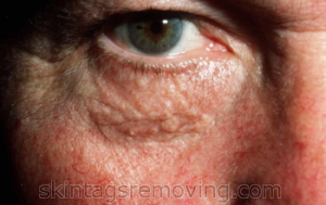 how to avoid syringoma