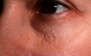 avoid syringoma without removal