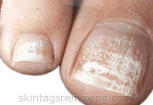 Symptoms of white spots on toes