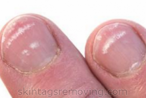 Treating the symptoms of white spots on nails