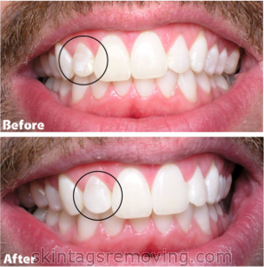 White spots on teeth; before and after pictures