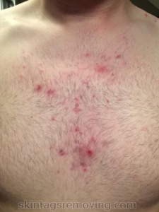 pimples on chest