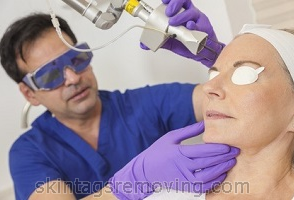 Acne laser removal cost