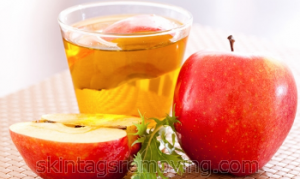 Does apple cider vinegar help