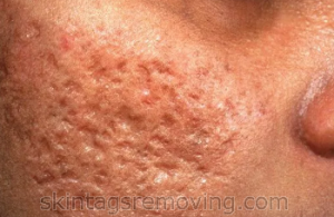 acne scars by prevention