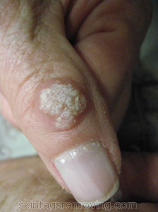 How to treat infected warts