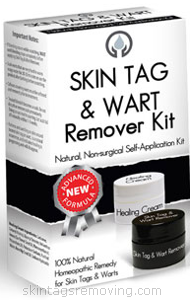 over the counter skin tag removal