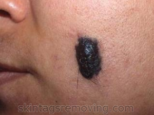 Painful Mole