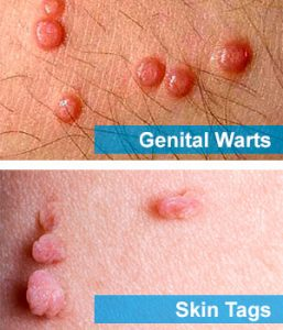 Difference Between Genital Warts And Skin Tags How To