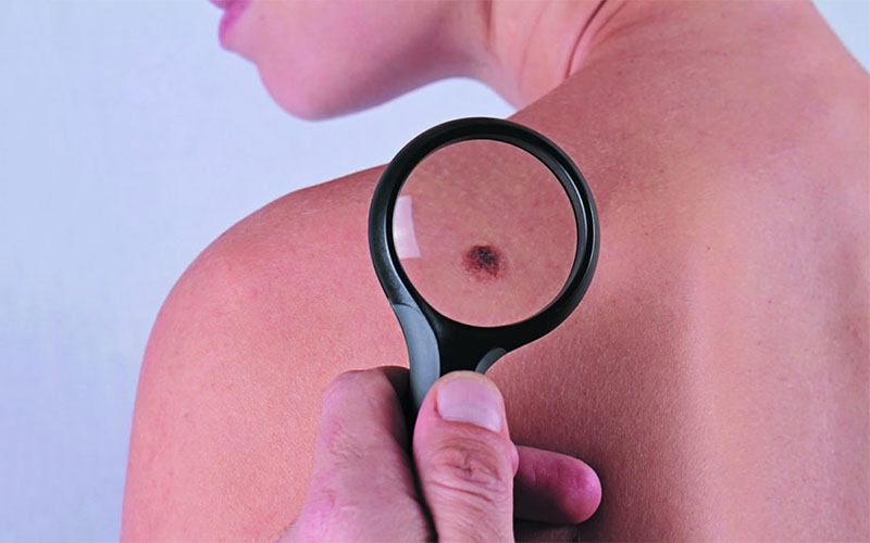 skin tag in mouth