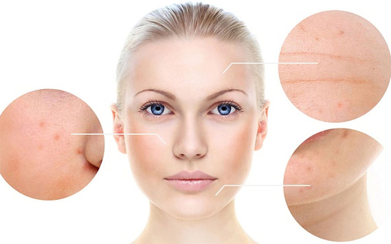 Different Types Of Acne On Face Best Treatment With Pictures