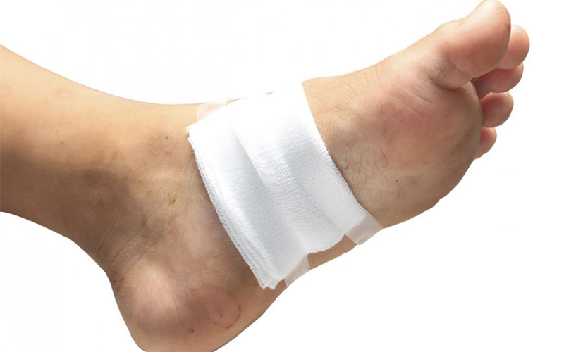 Blood blister on foot, bottom of foot, under skin on foot: treatment with  pictures.