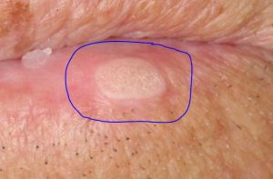 white patches on penile head