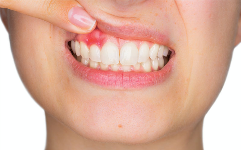 How to remove blood blister on gums in mouth, above tooth: treatments.