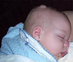 Hard Small Movable Lump On Baby Head Causes Symptoms