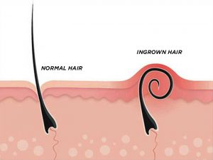 Ingrown Hair On Vagina Labia Vaginal Lips Symptoms Prevention