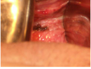 Understand Lesions vagina vulva can recommend