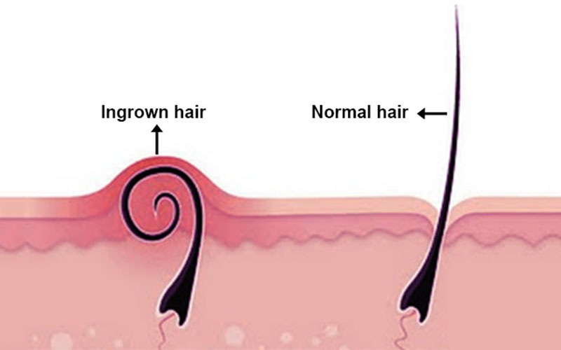 What Is An Ingrown Hair And What Does It Look Or Feel Like
