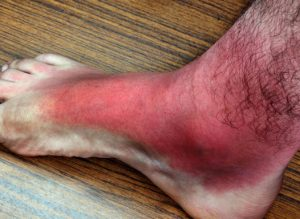 Cellulitis On Foot Symptoms Causes Diagnosis Treatment