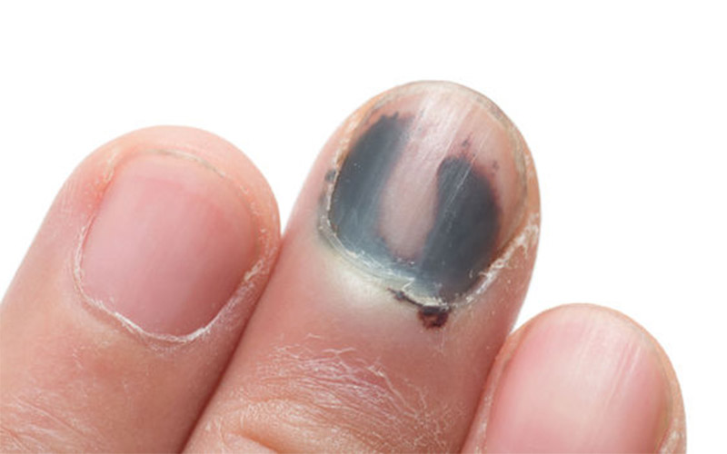 Melanoma Under Toenail, Fingernail, on Toe, on Finger: Symptoms ...