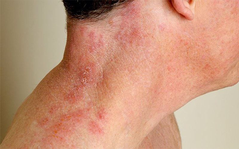 Shingles or hives or what | Shingles | Infections ...