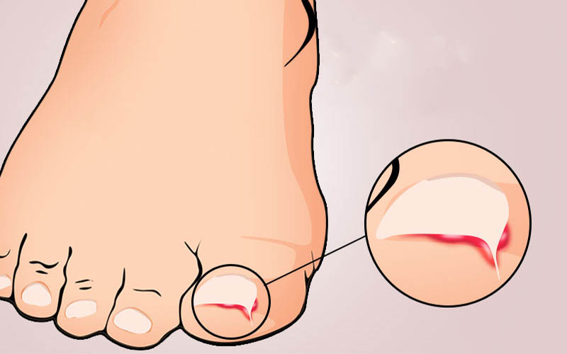 What is an Ingrown Thumb Nail: Symptoms, Infection, Removal and ...