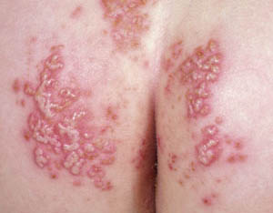 how to tell if a rash is bacterial