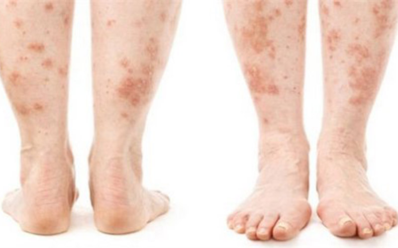 Shingles On Leg Symptoms