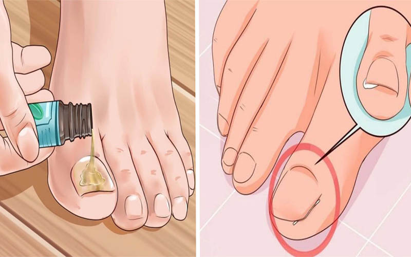 What Causes an Ingrown Toenail and How to Cure it With Home Remedies